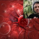 Сензация! Писател откри как се лекува туморно образование за минути!!!