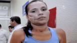 Тази жена претърпява най-странната операция, след като предмет се удря в главата ѝ! Вижте!